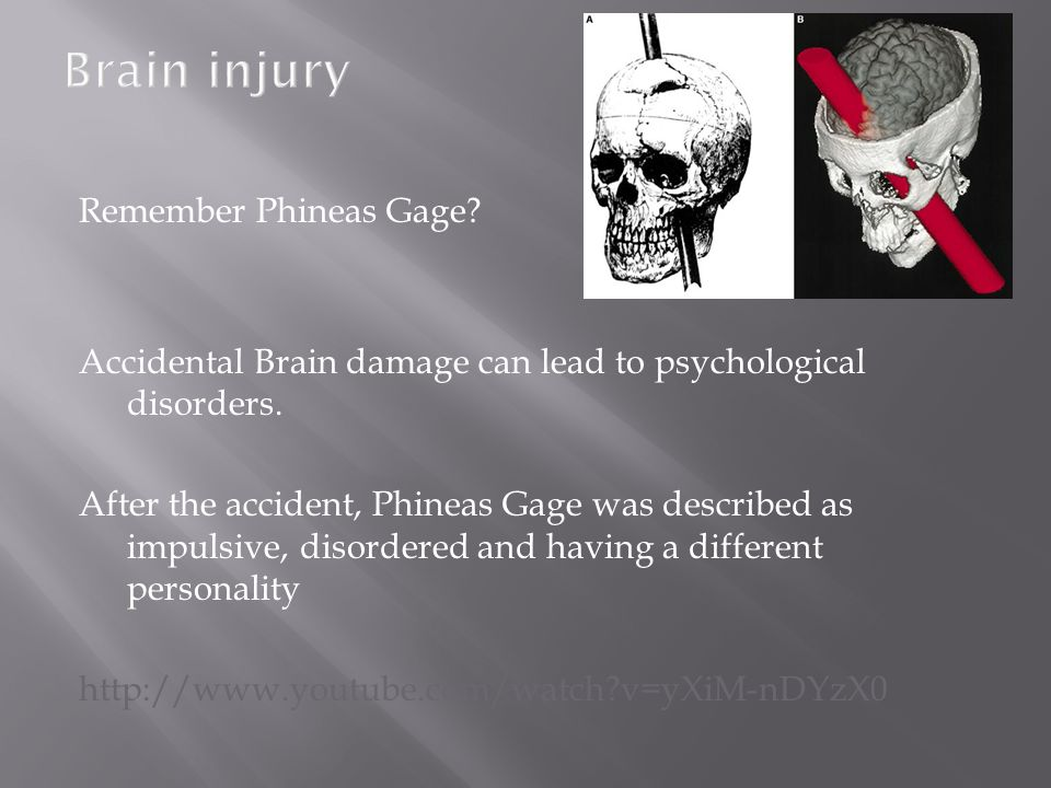 Brain injury Remember Phineas Gage