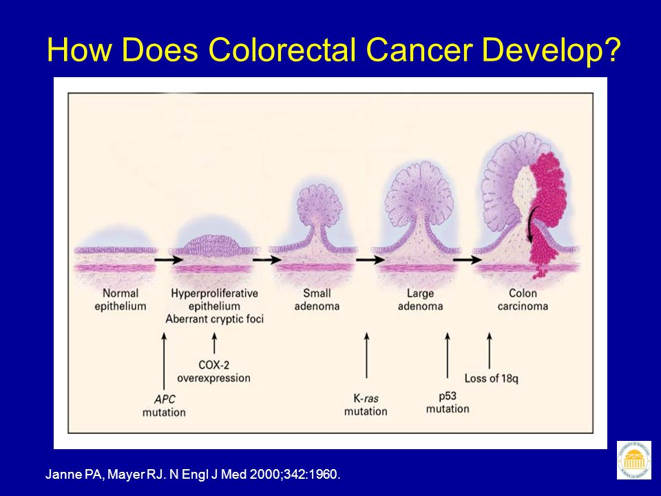How Does Colorectal Cancer Develop