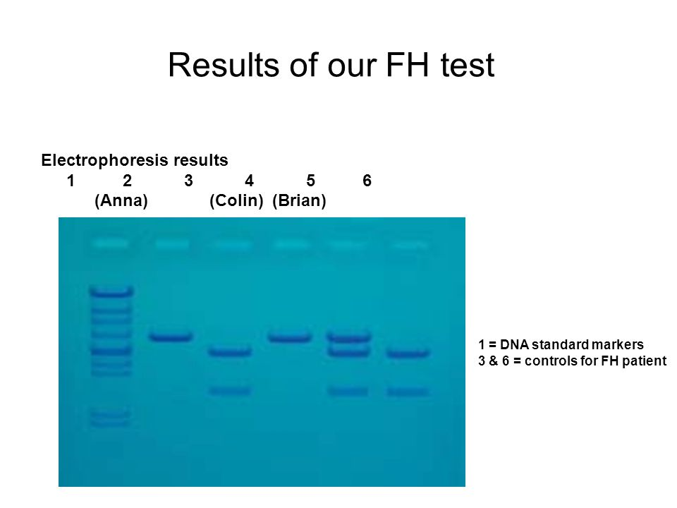 Results of our FH test Electrophoresis results 1 2 3 4 5 6