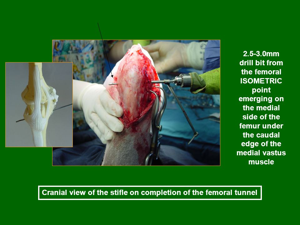 Cranial view of the stifle on completion of the femoral tunnel