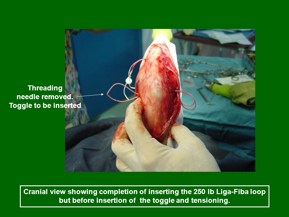 Cranial view showing completion of inserting the 250 lb Liga-Fiba loop