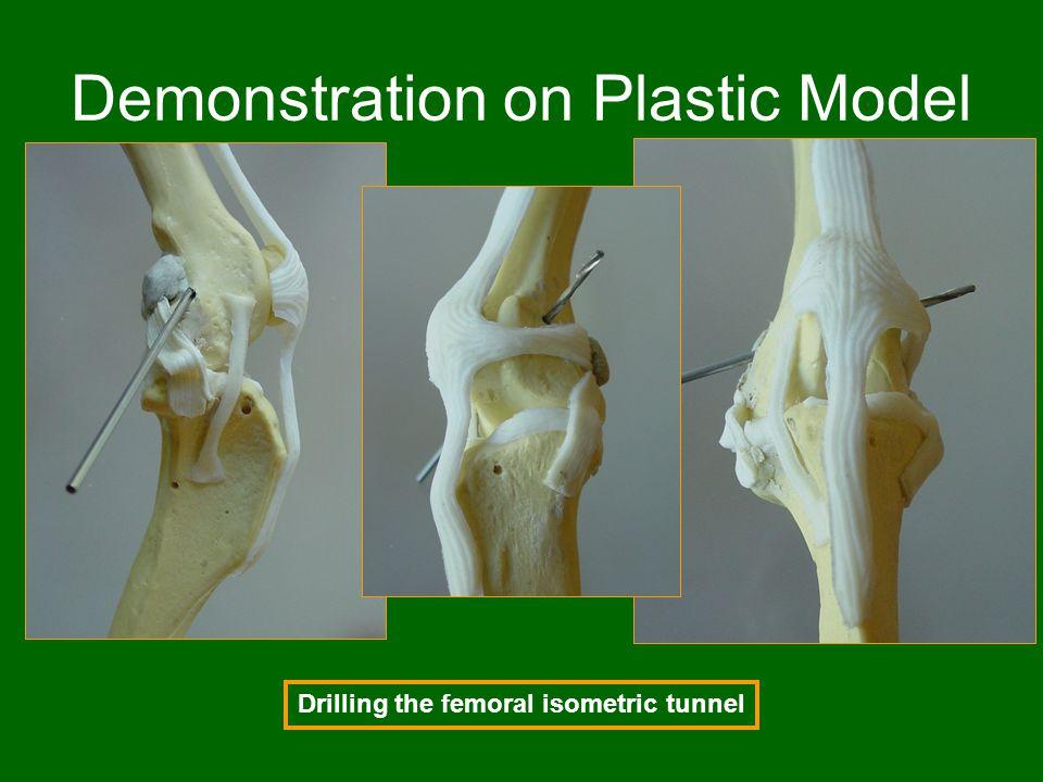 Demonstration on Plastic Model
