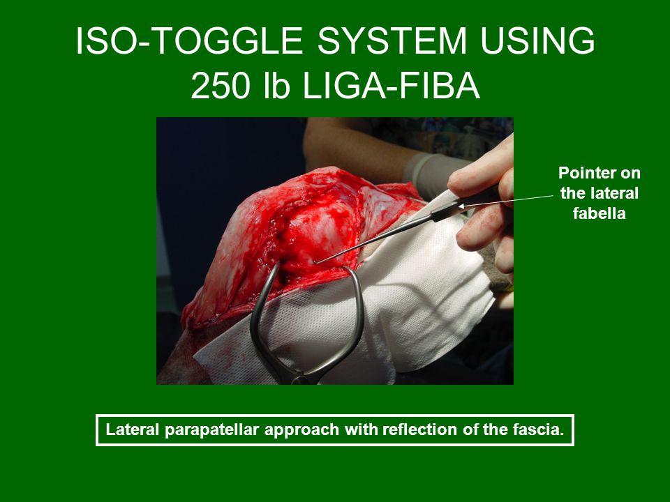 ISO-TOGGLE SYSTEM USING 250 lb LIGA-FIBA
