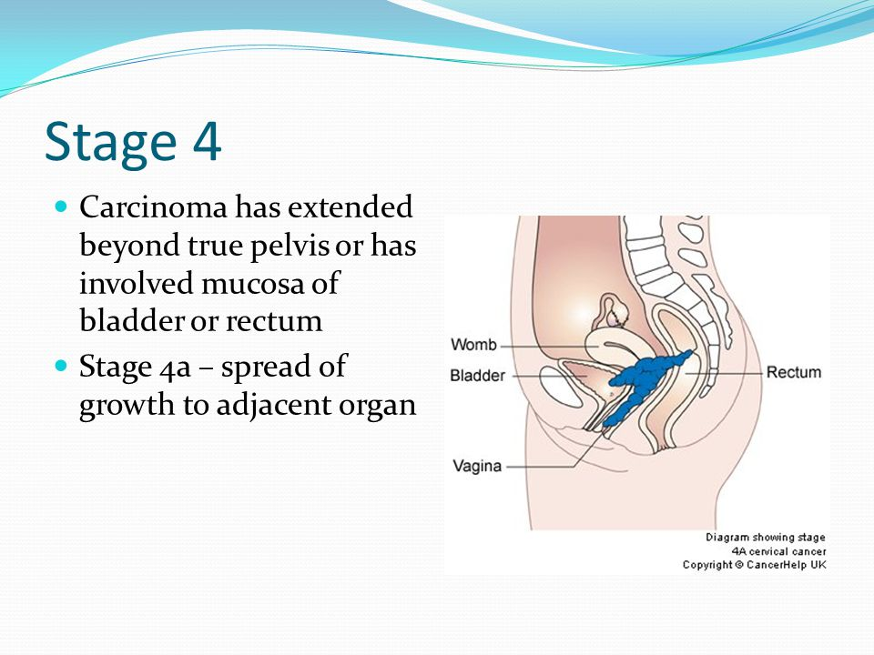 Stage 4 Carcinoma has extended beyond true pelvis or has involved mucosa of bladder or rectum.