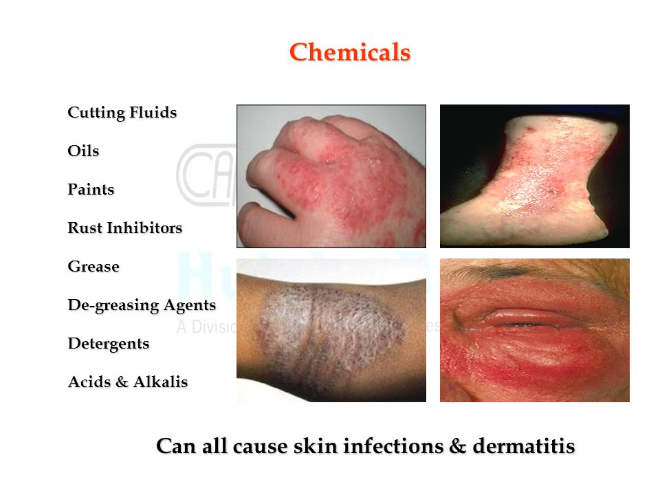 Can all cause skin infections & dermatitis