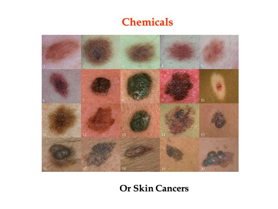 Chemicals Or Skin Cancers