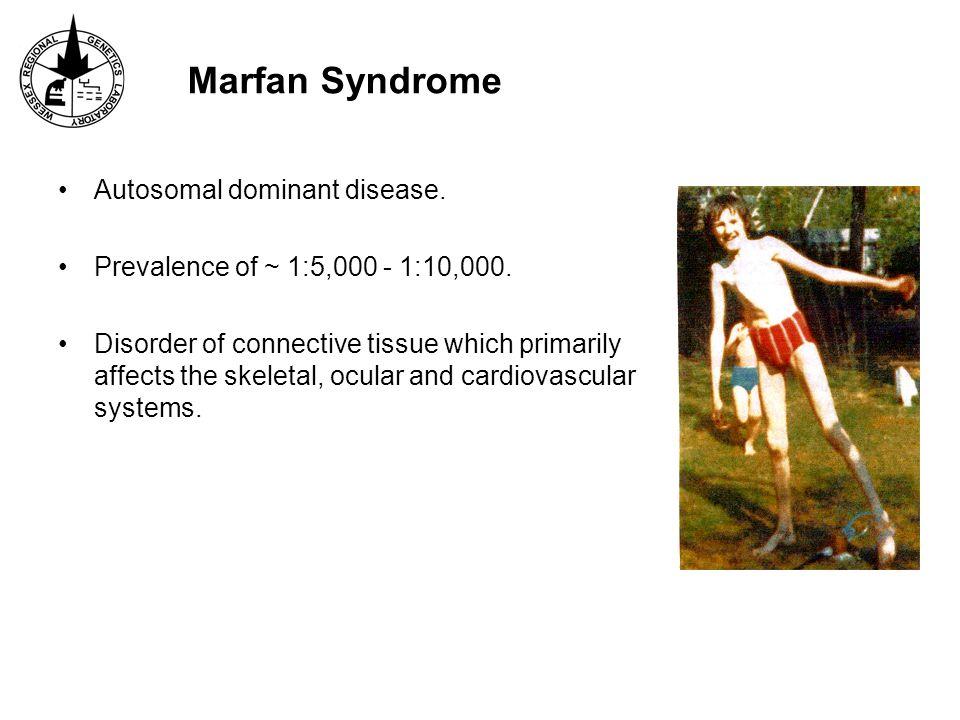 Marfan Syndrome Autosomal dominant disease.