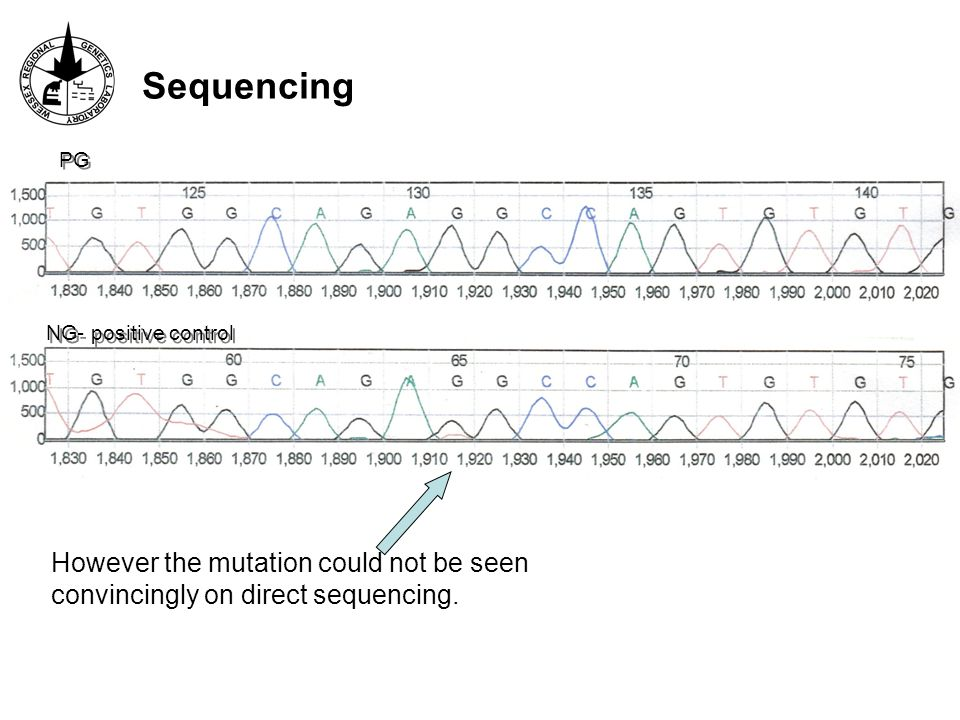 Sequencing PG. NG- positive control.