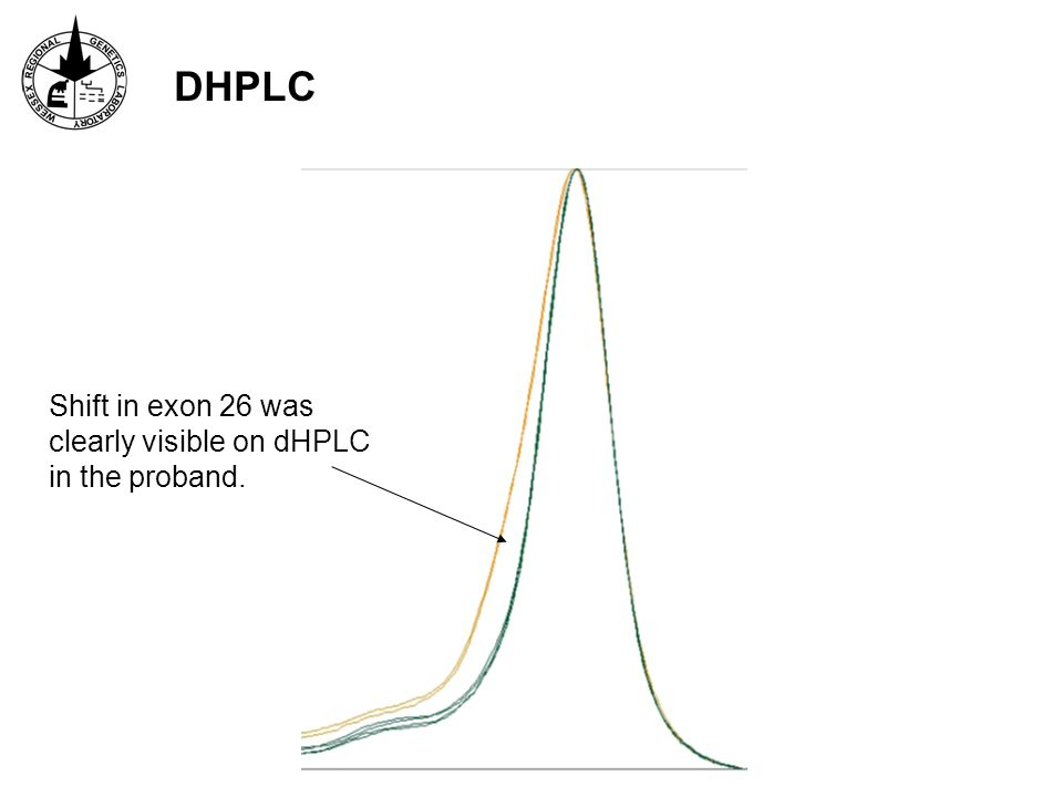 DHPLC Shift in exon 26 was clearly visible on dHPLC in the proband.
