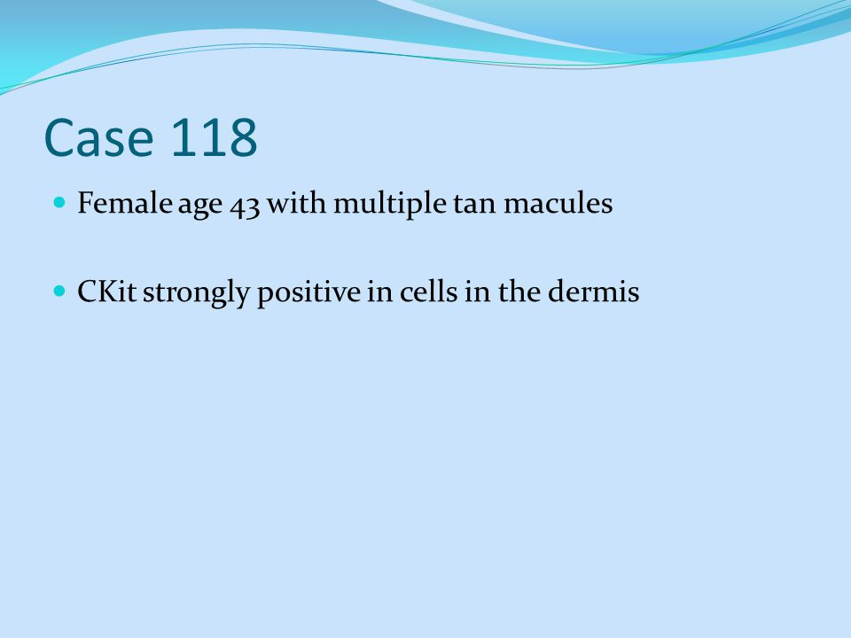 Case 118 Female age 43 with multiple tan macules