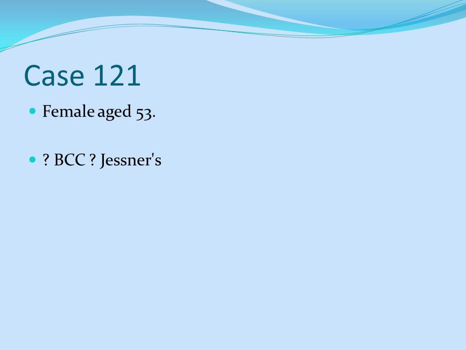 Case 121 Female aged 53. BCC Jessner s