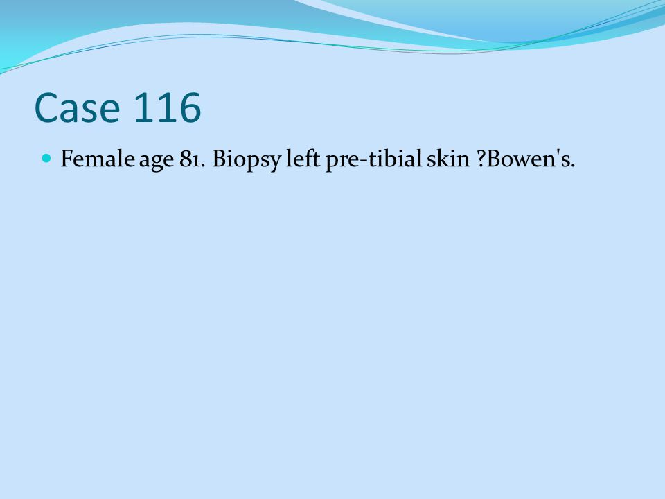 Case 116 Female age 81. Biopsy left pre-tibial skin Bowen s.
