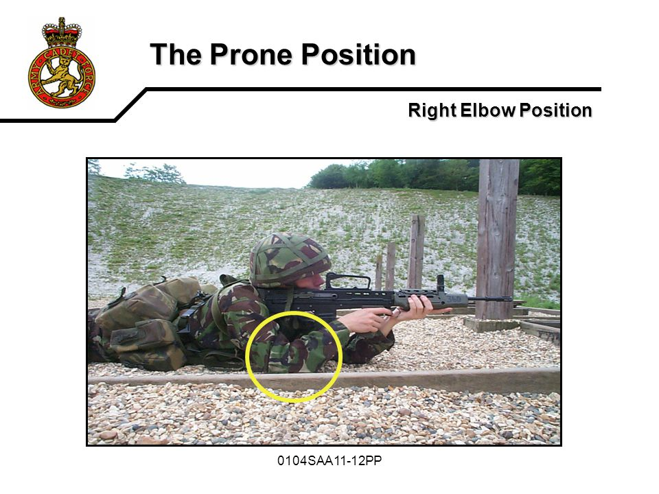 The Prone Position Right Elbow Position 0104SAA11-12PP