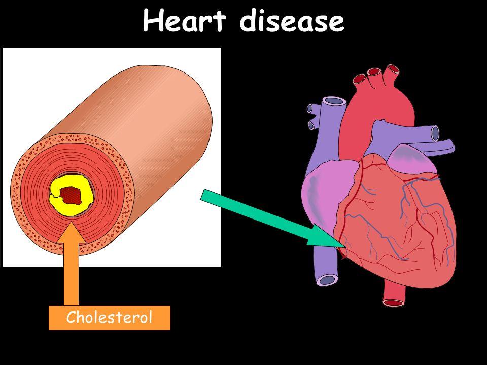 Heart disease Cholesterol