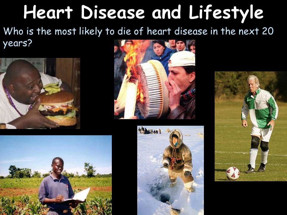 Heart Disease and Lifestyle