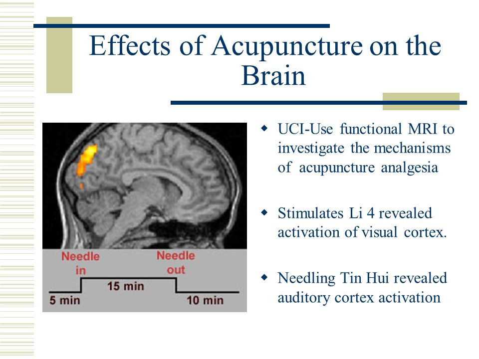 Effects of Acupuncture on the Brain