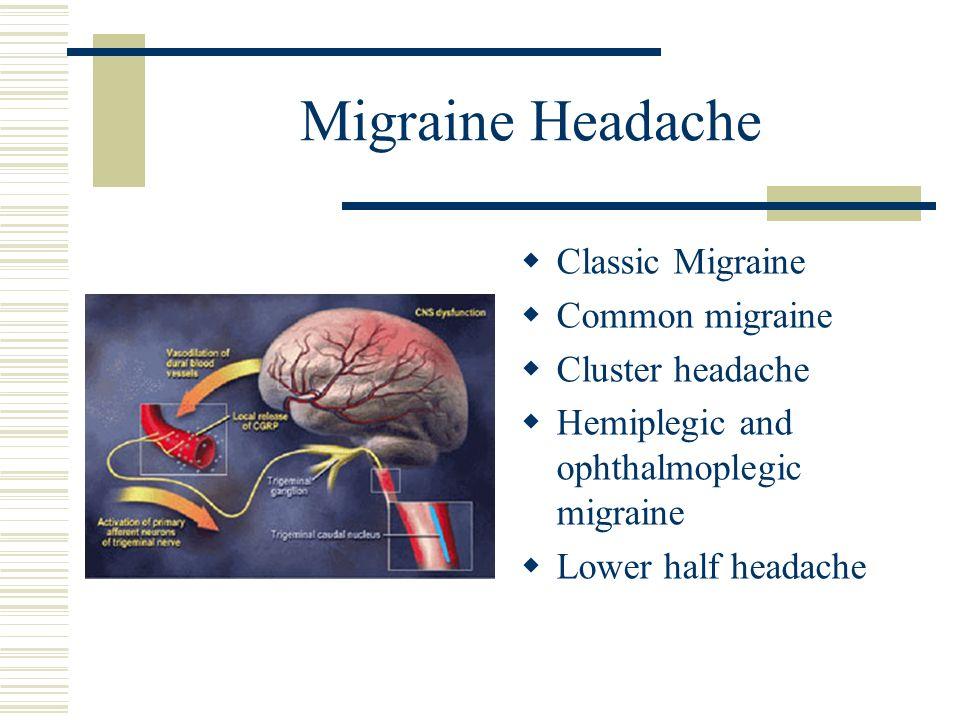 Migraine Headache Classic Migraine Common migraine Cluster headache