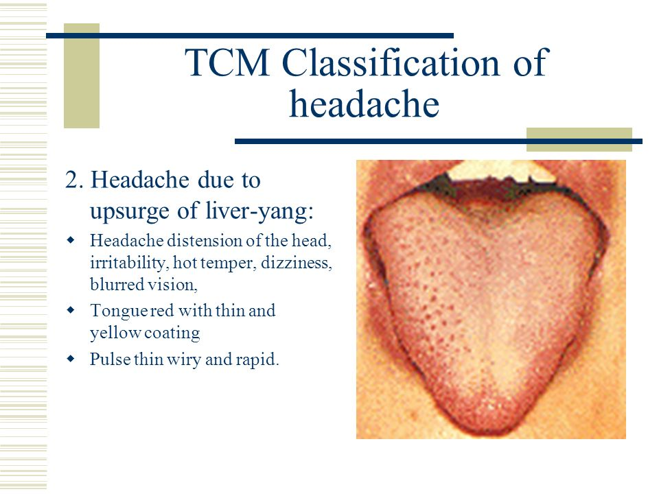 TCM Classification of headache