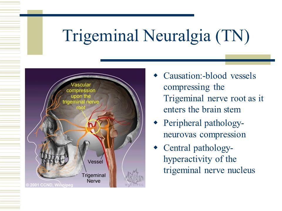 Trigeminal Neuralgia (TN)