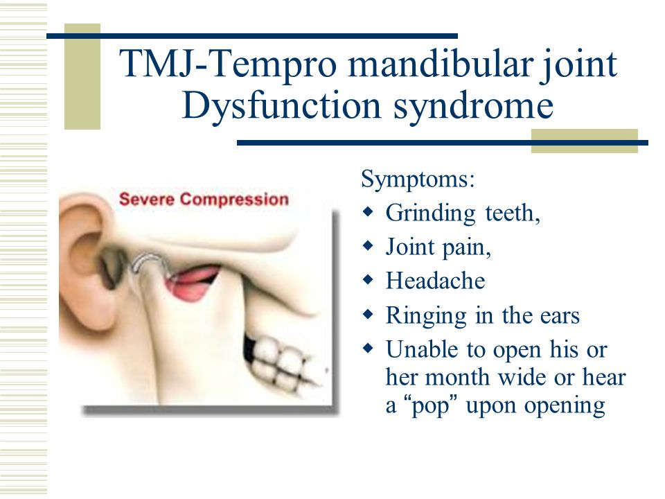 TMJ-Tempro mandibular joint Dysfunction syndrome