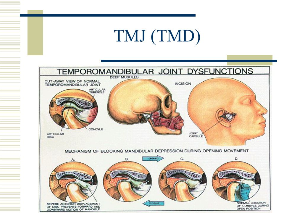 TMJ (TMD)