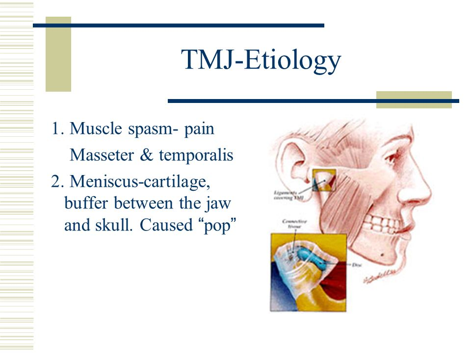 TMJ-Etiology 1. Muscle spasm- pain Masseter & temporalis