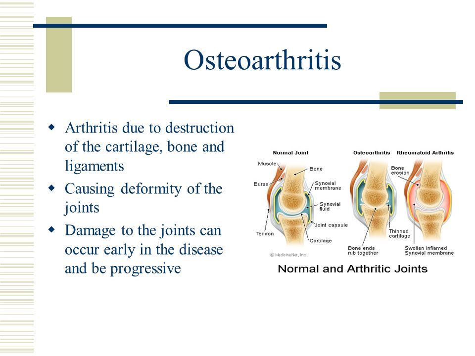 Osteoarthritis Arthritis due to destruction of the cartilage, bone and ligaments. Causing deformity of the joints.