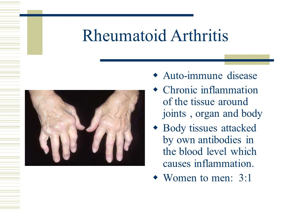 Rheumatoid Arthritis Auto-immune disease