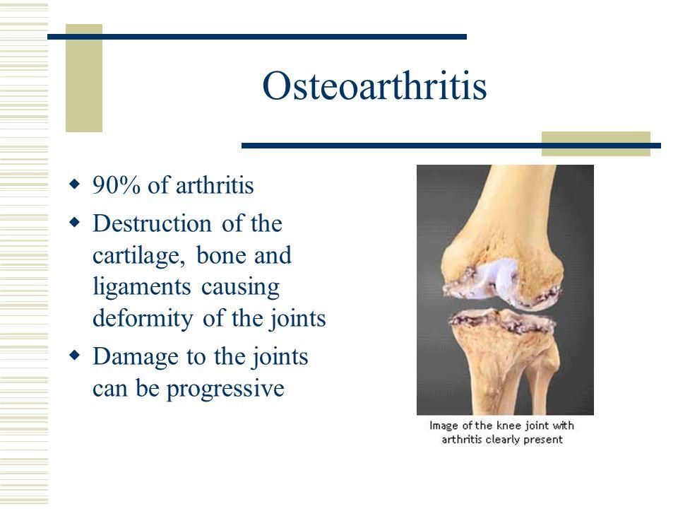 Osteoarthritis 90% of arthritis