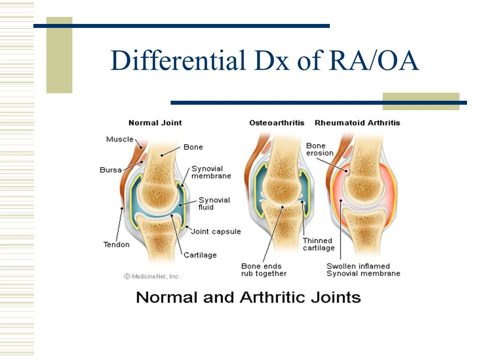Differential Dx of RA/OA