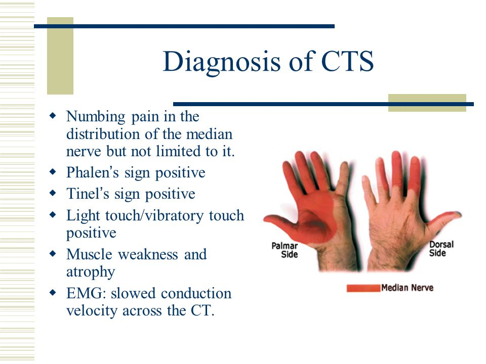 Diagnosis of CTS Numbing pain in the distribution of the median nerve but not limited to it. Phalen's sign positive.