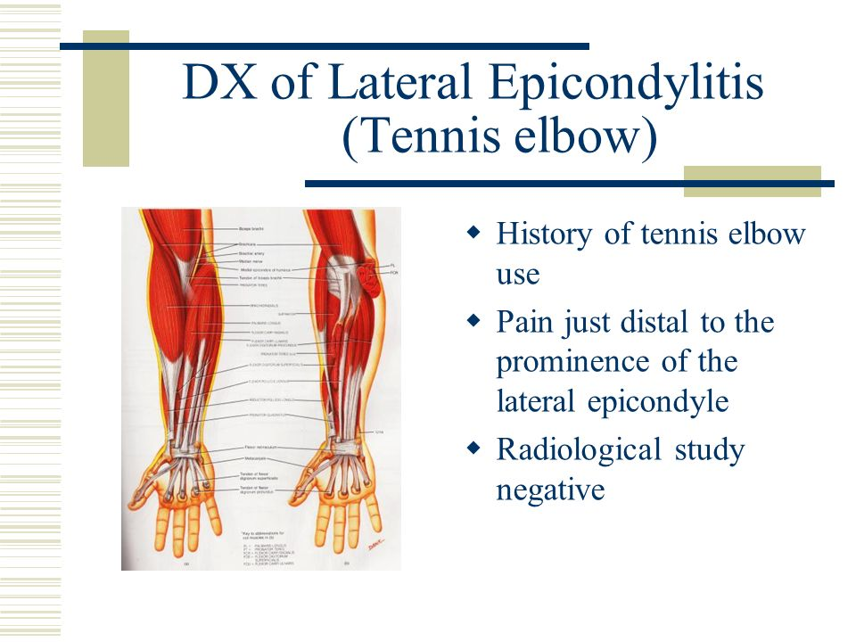 DX of Lateral Epicondylitis (Tennis elbow)