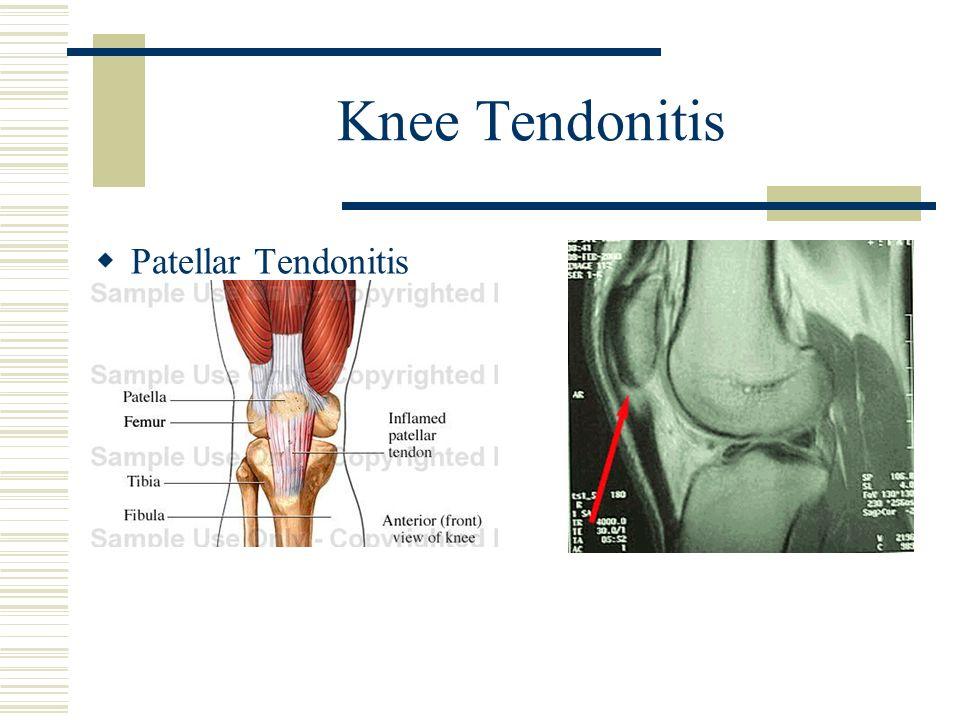 Knee Tendonitis Patellar Tendonitis