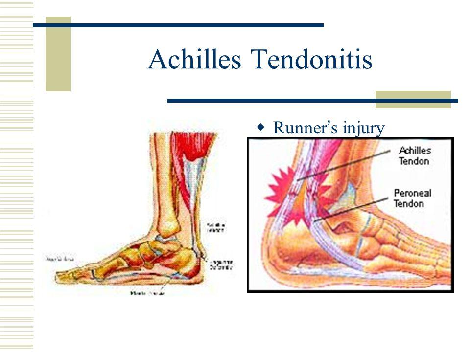 Achilles Tendonitis Runner's injury
