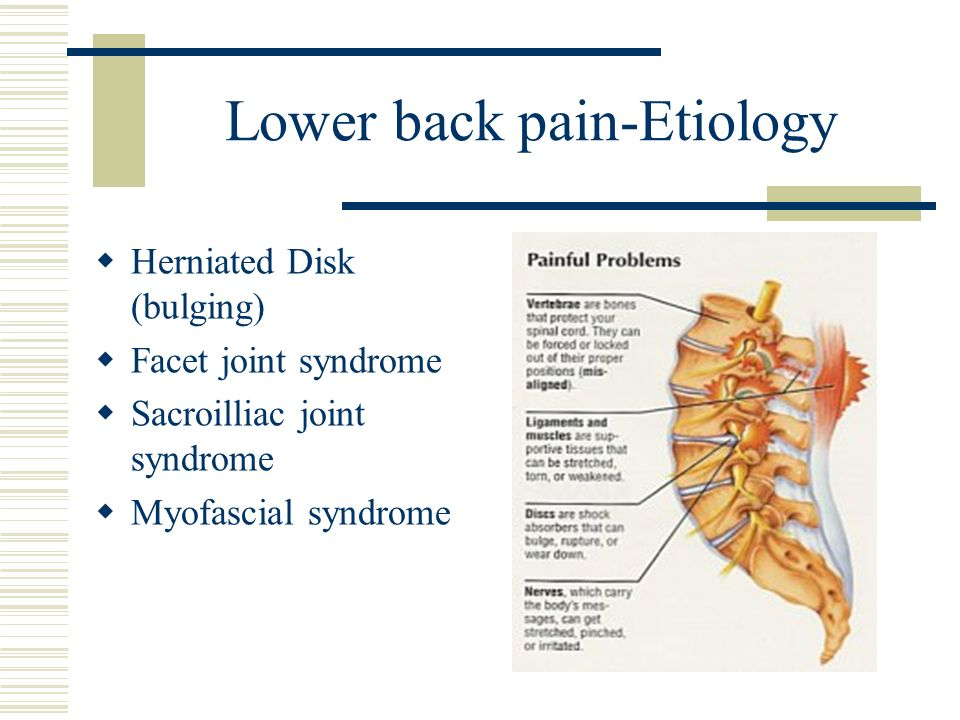 Lower back pain-Etiology