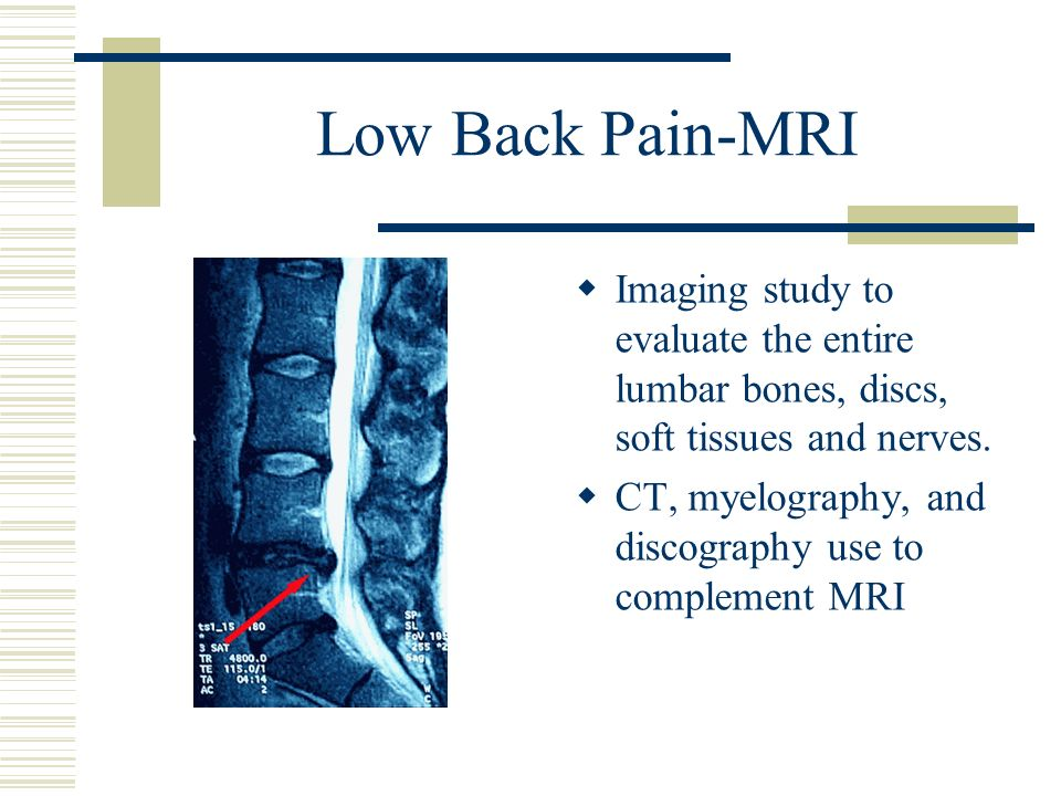 Low Back Pain-MRIImaging study to evaluate the entire lumbar bones, discs, soft tissues and nerves.