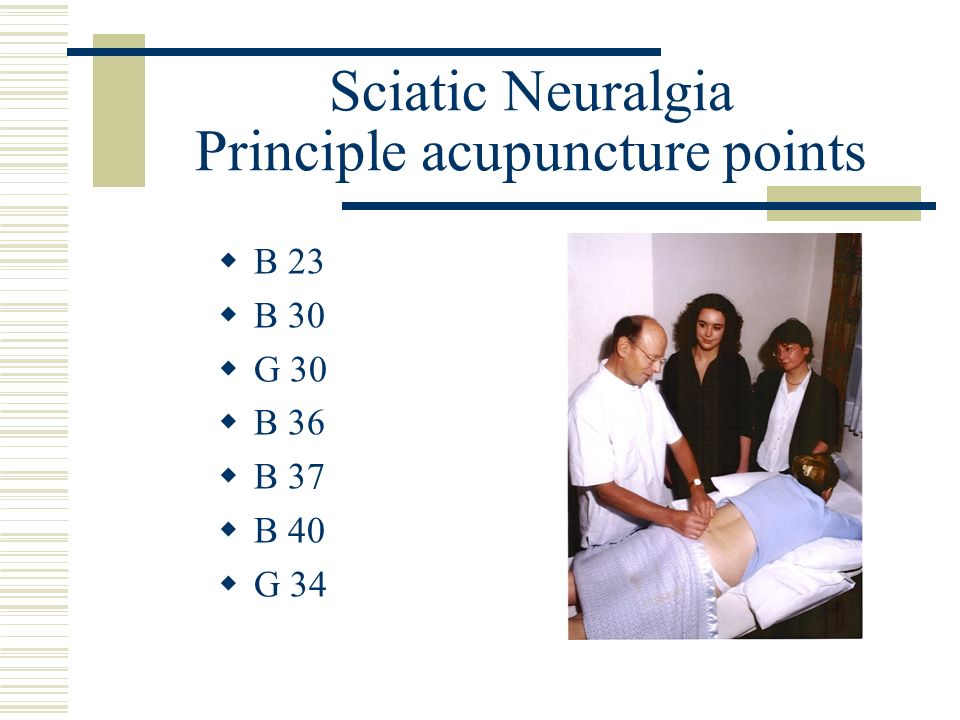 Sciatic Neuralgia Principle acupuncture points