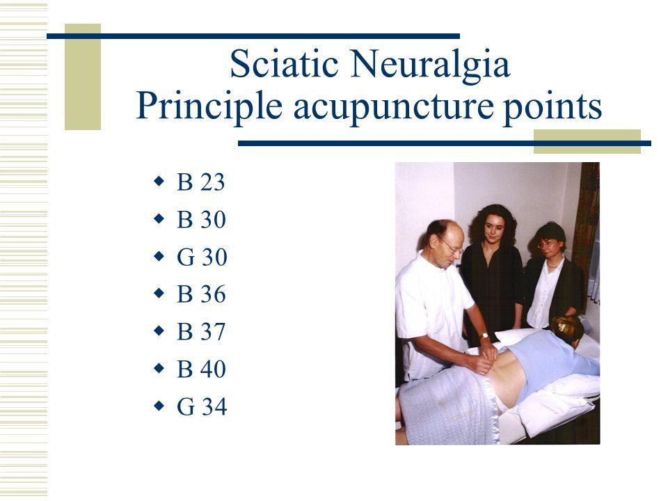 Sciatic Neuralgia Principle acupuncture points