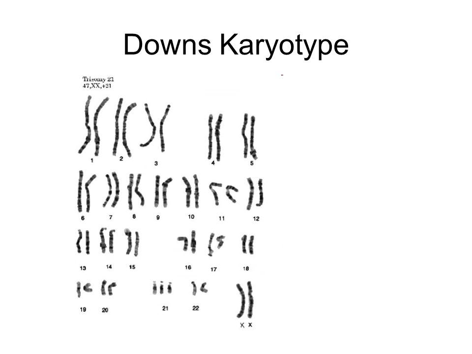 Downs Karyotype