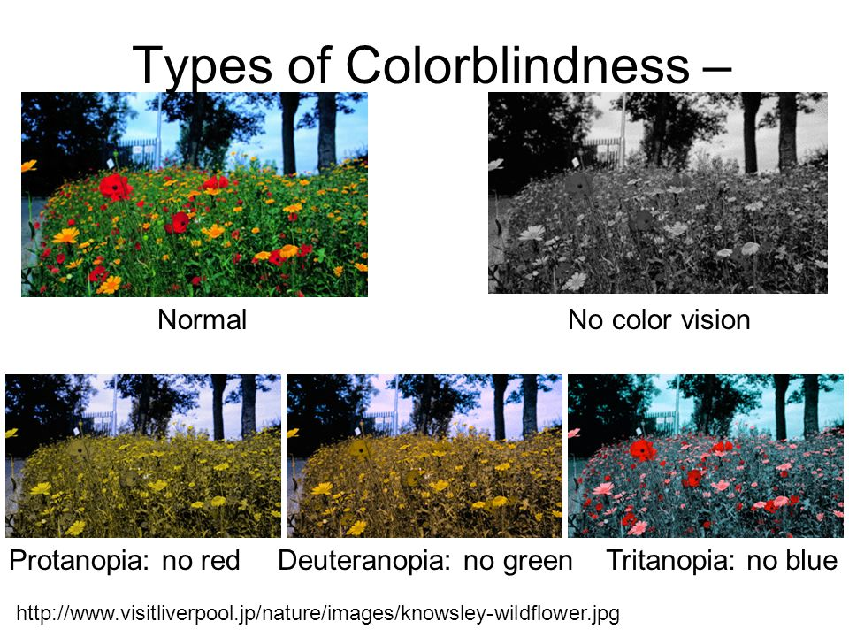 Types of Colorblindness –