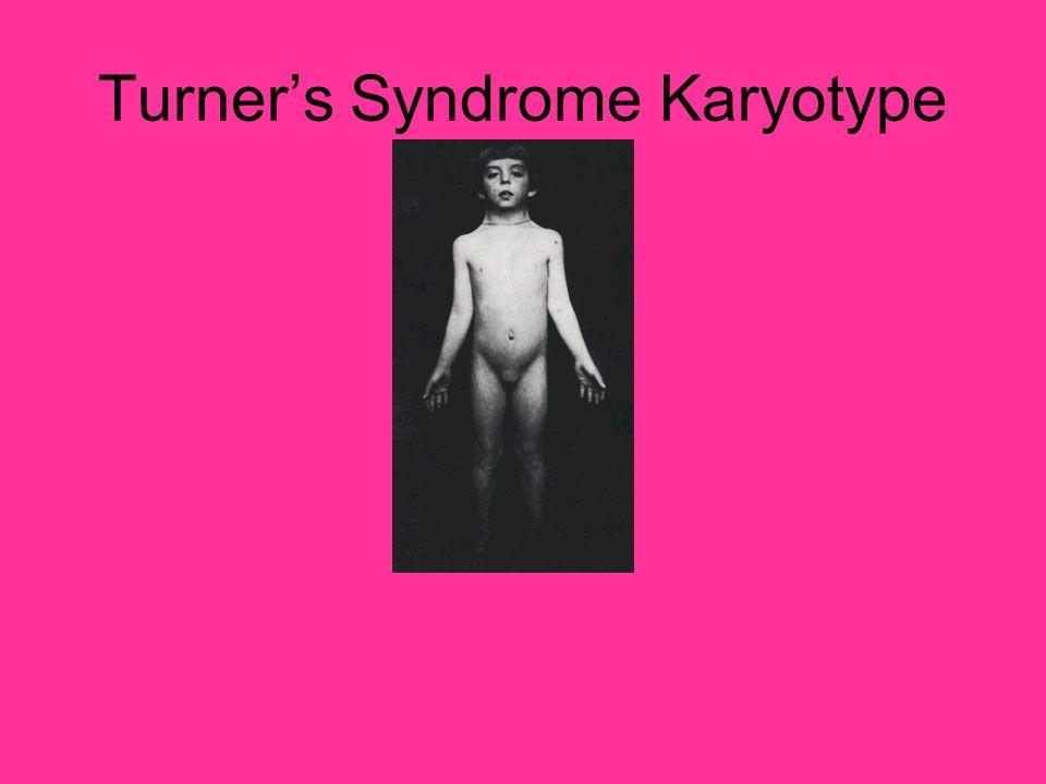 Turner's Syndrome Karyotype