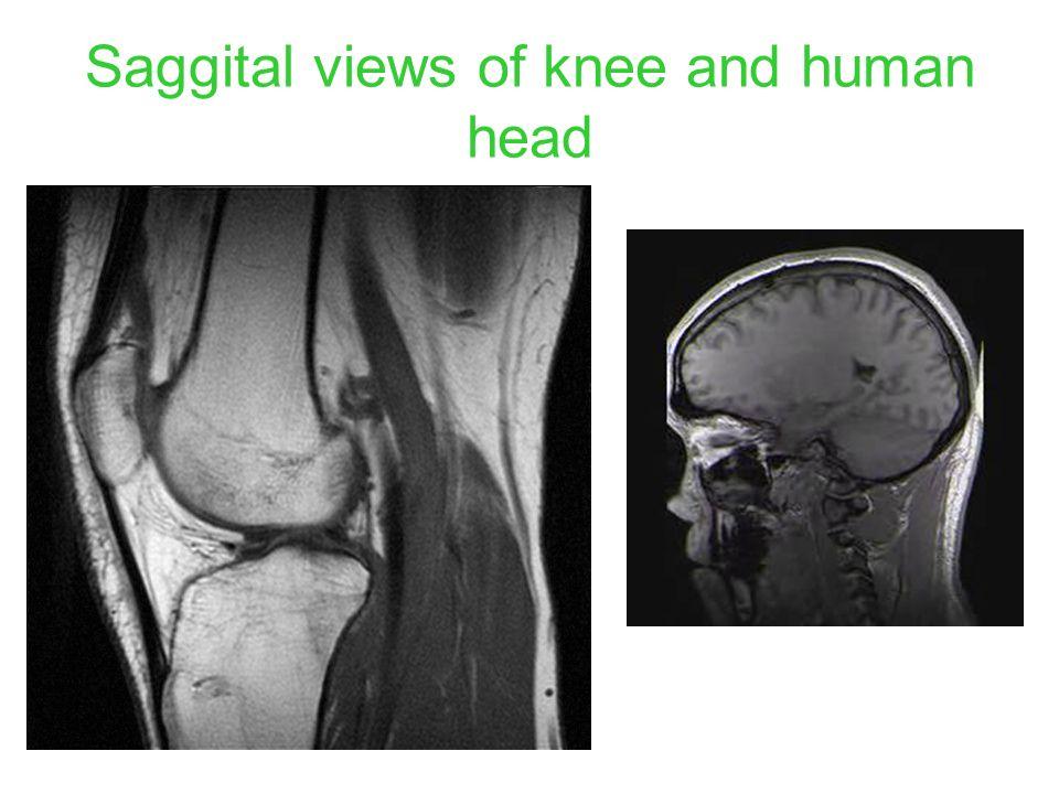 Saggital views of knee and human head