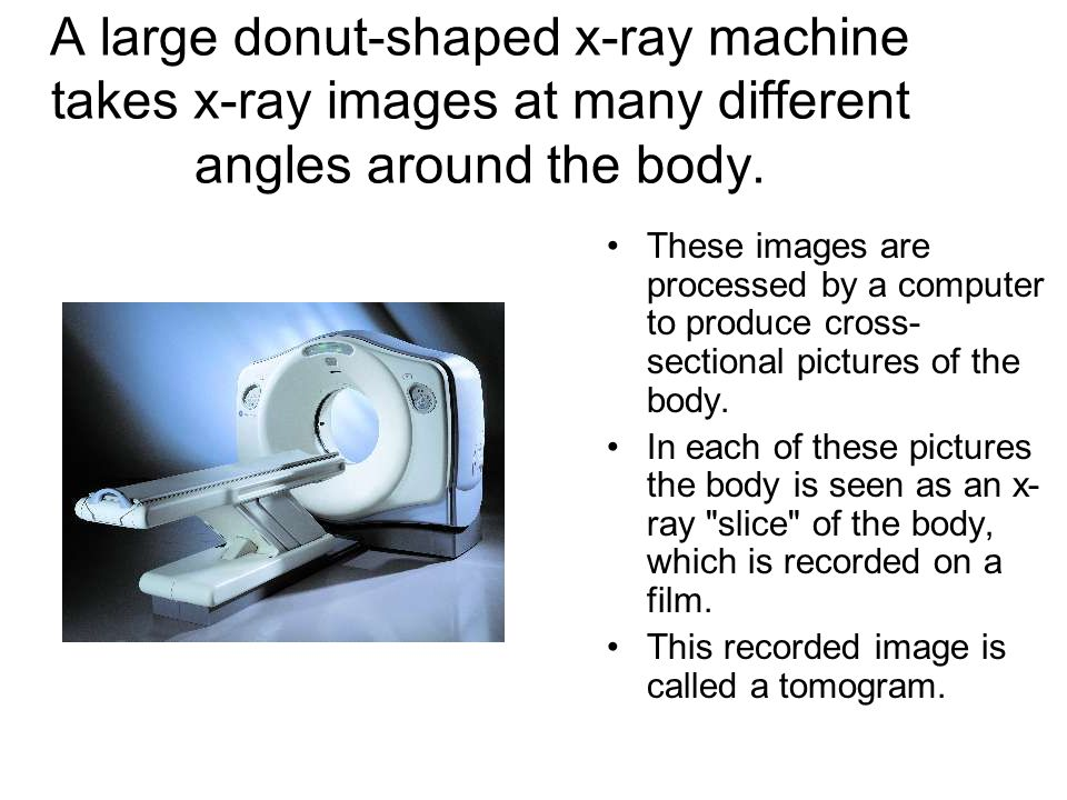 A large donut-shaped x-ray machine takes x-ray images at many different angles around the body.