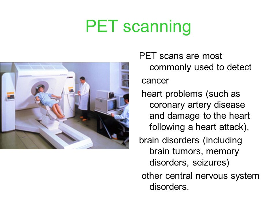 PET scanning PET scans are most commonly used to detect cancer