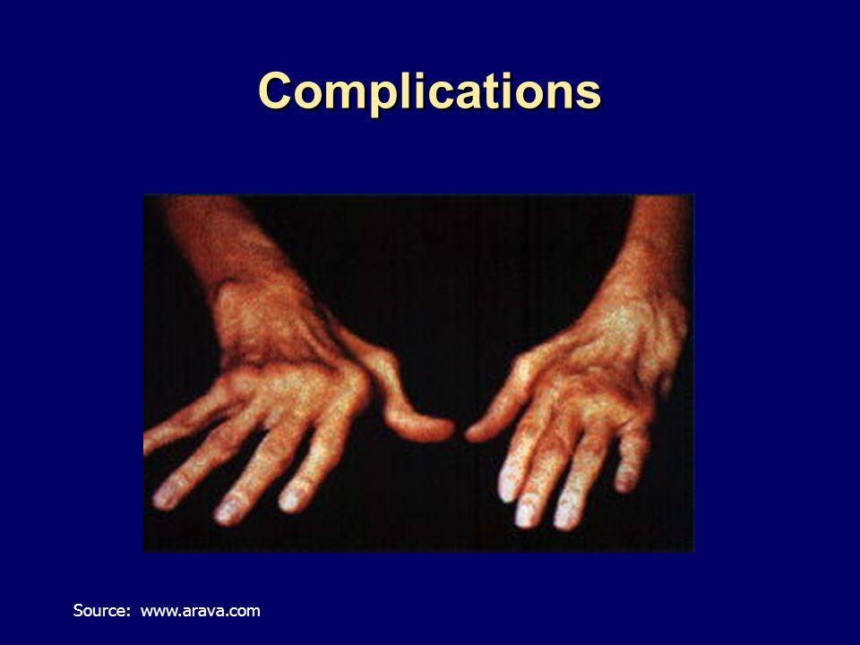 Complications Source: www.arava.com