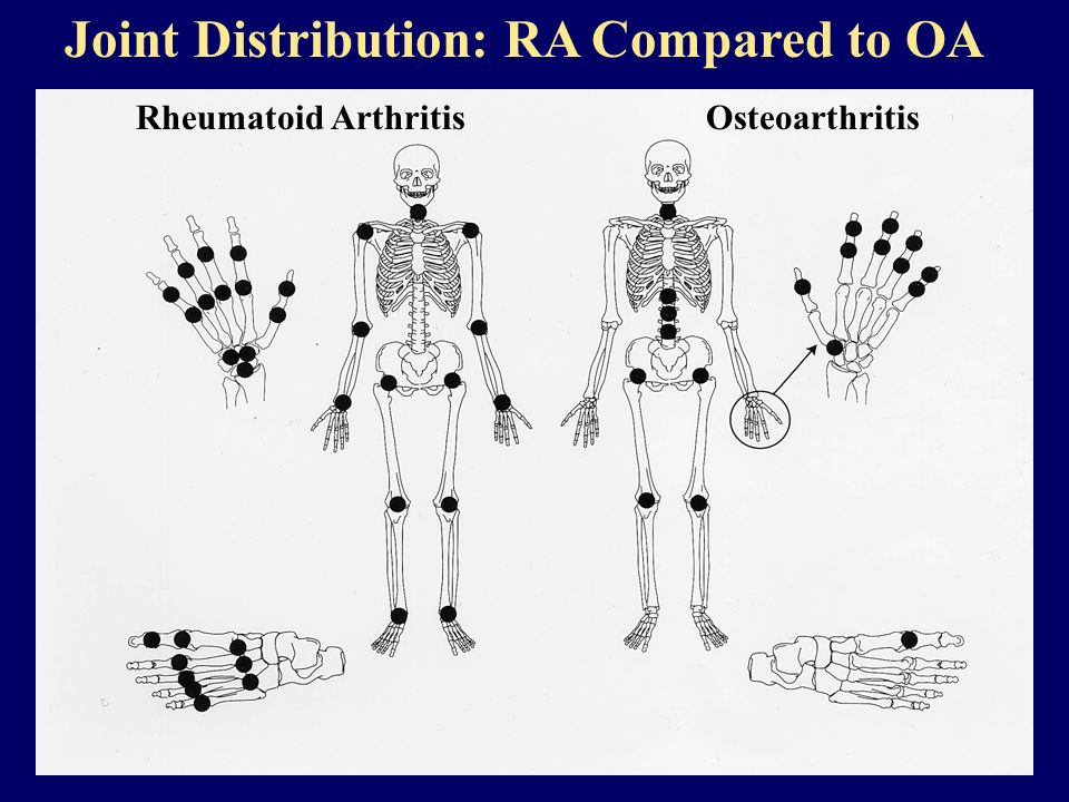 Joint Distribution: RA Compared to OA
