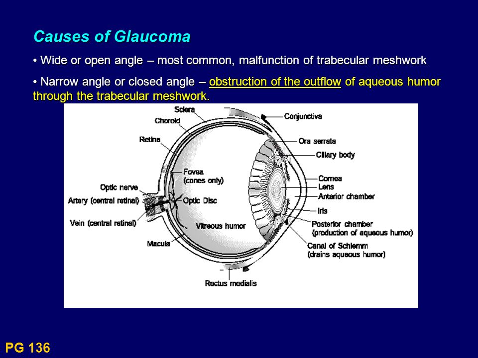 Causes of Glaucoma • Wide or open angle – most common, malfunction of trabecular meshwork.