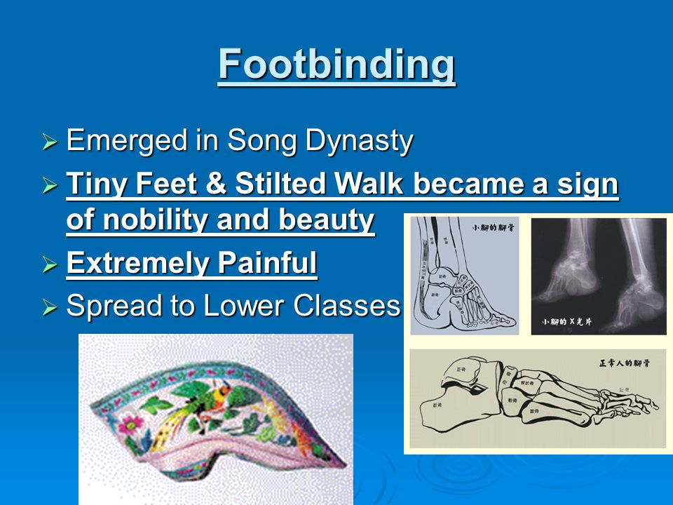 Footbinding Emerged in Song Dynasty
