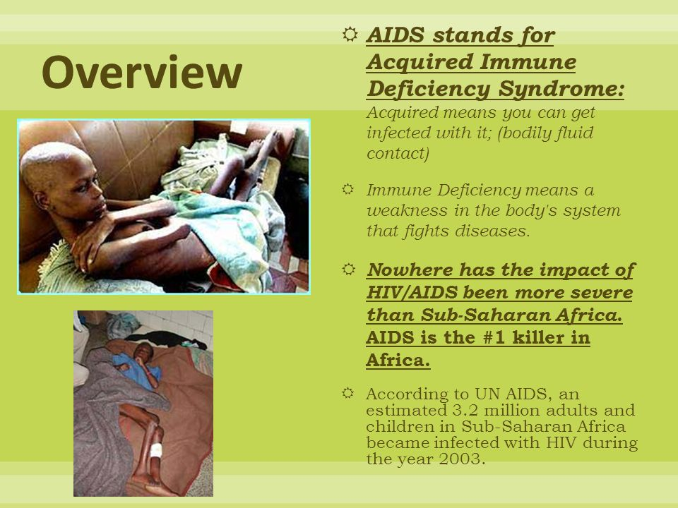 Overview AIDS stands for Acquired Immune Deficiency Syndrome: Acquired means you can get infected with it; (bodily fluid contact)