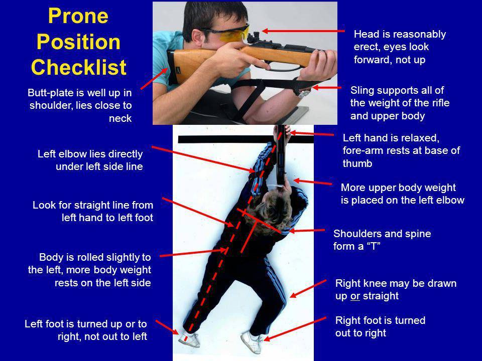 Prone Position Checklist